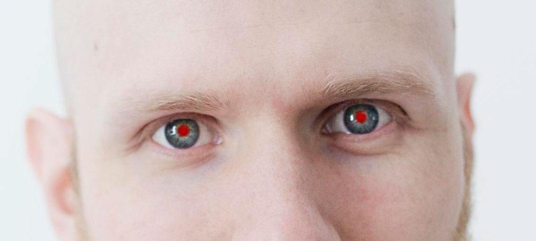 ta bort röda ögon online